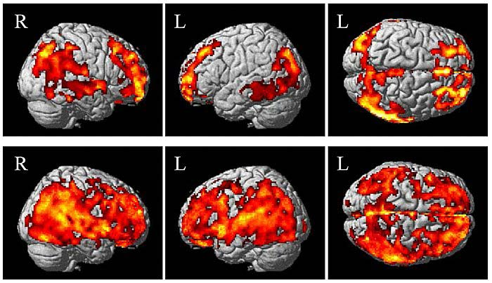 Brain fields with beta-amyloid. First line: cognitively healthy elderly without subjective memory decline. Second line: elderly with increased amyloid deposition and memory decline.