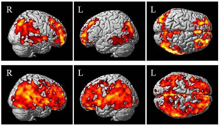 Aree del cervello con beta-amiloide. Prima riga: anziani cognitivamente normali senza declino soggettivo della memoria. Seconda riga: anziani con aumento della deposizione di amiloide e declino della memoria.