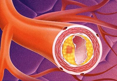 Placca ateromatosa neoformata che riduce il lume vascolare.
