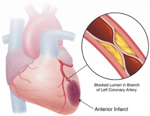 Atherosclerosis heart compromise